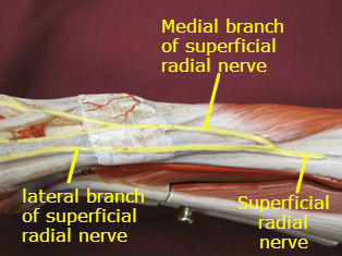 wrist-muscles-lateral-labeled