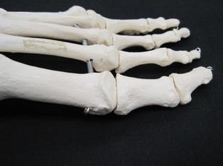 1st-metatarsal-phalangeal-bone-1770