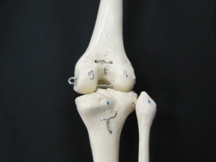anatomy-model-knee-014