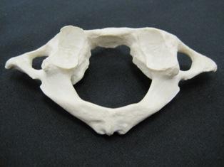atlas-posterior-cervical-spine-1667