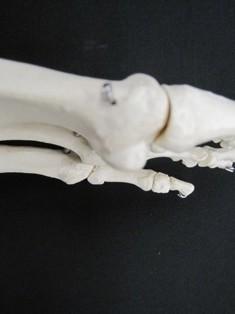 Sesamoid bone under first metatarsal