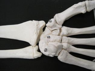 carpal-hand-anterior-bone-1660