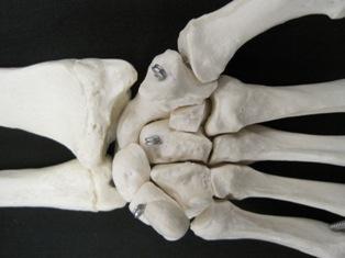 carpal-hand-bone-anterior-1661