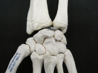 carpal-posterior-hand-bone-1655