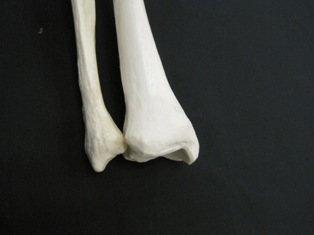 distal-tibia-fibula-bone