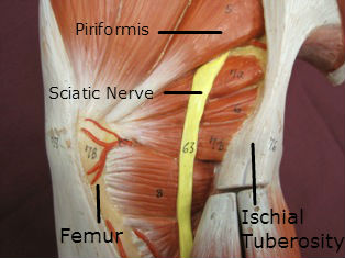 gluteal-sciatic-nerve-labeled