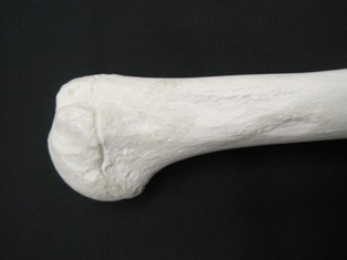 humeral-head-bone-1619