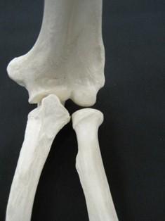 humerus-radius-ulna-joint-bone-1626