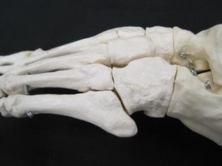lateral-tarsals-5th-foot-bones
