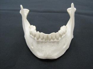 mandible-anterior-1585