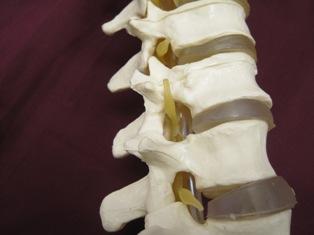 oblique-spine