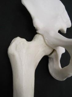 pelvis-femur-bone-1728