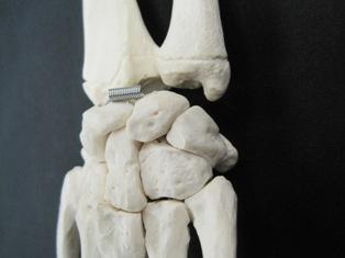 posterior-carpal-bones-1656