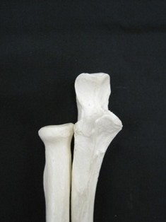 radius-proximal-ulna-bone-1630