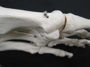 sesamoid-bone-foot-toe-1773