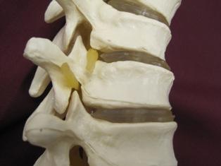 spine-facet