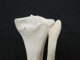 tibia-fibula-proximal